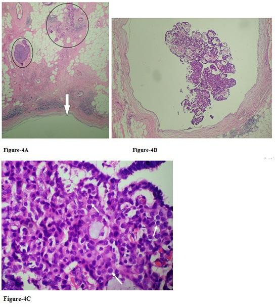 Papiloma intraductal com atipia - Hpv throat cancer cure