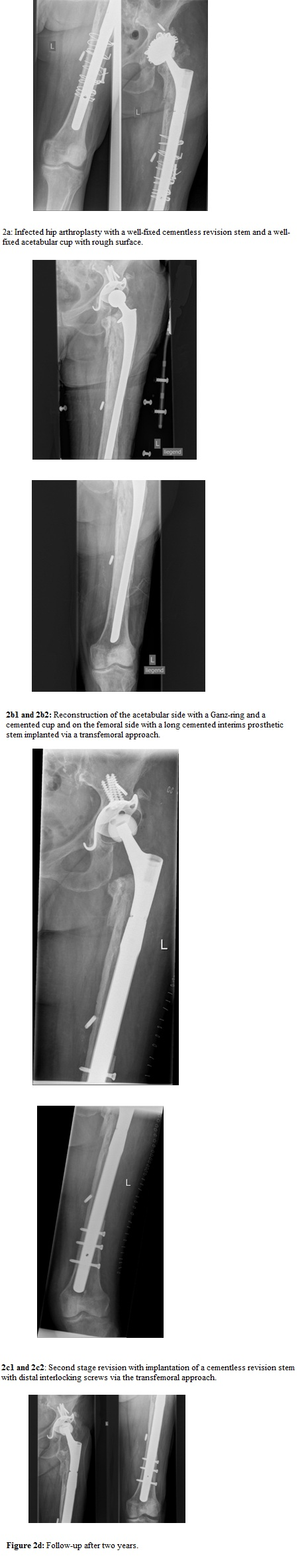 Pros and Cons of Spacers in the Treatment of Late Periprosthetic ...