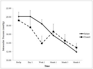 Tisseel Fibrin Glue vs Sutures for Conjunctival Closure in