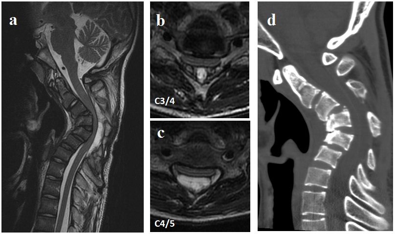 Severe Cervical Kyphosis In Adolescent After Minor Trauma A Case