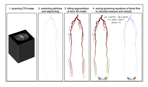 Mathematical Modeling of Blood Flow to Evaluate the Hemodynamic Significance of Peripheral Vascular Lesions