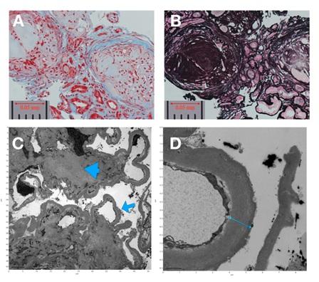 Diabetic Nephropathy Simulating Autoimmune-Related Glomerulonephritis: A Case Report
